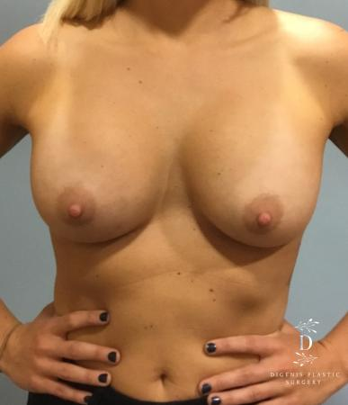 Breast Augmentation: Patient 3 - After Image 1