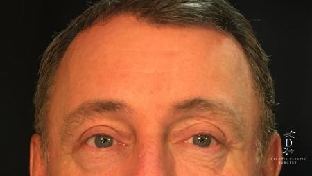 Eyelid Surgery: Patient 1 - After Image 1