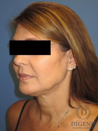 Facelift: Patient 10 - Before Image 4