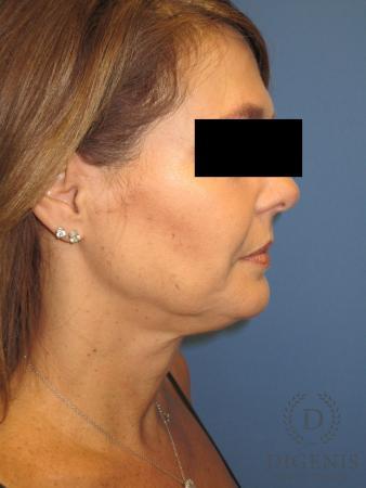 Facelift: Patient 10 - Before Image 3