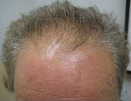 NeoGraft Hair Restoration: Patient 1 - Before Image