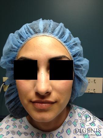Rhinoplasty: Patient 7 - Before Image