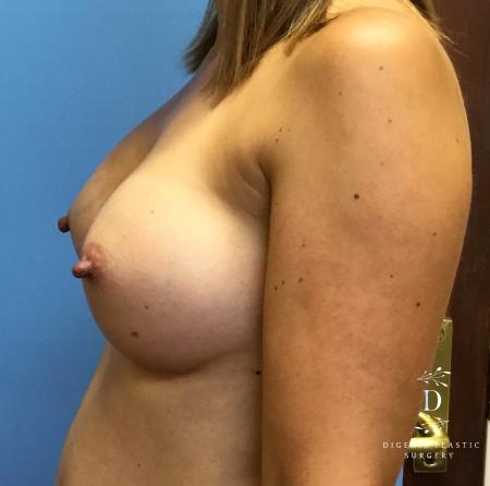 Breast Augmentation: Patient 8 - After Image 5