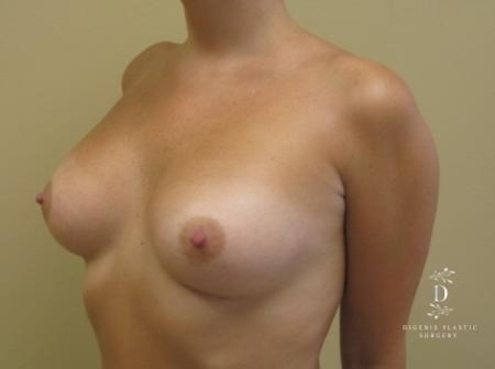 Breast Augmentation: Patient 4 - After Image 3