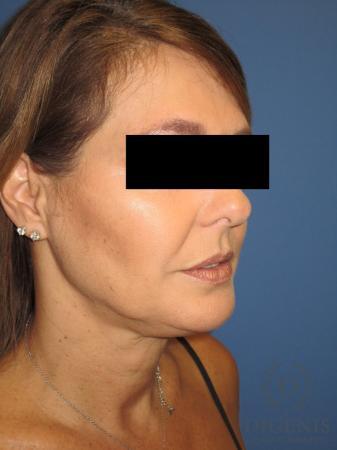 Facelift: Patient 10 - Before Image 2