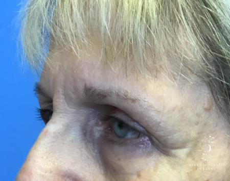 Eyelid Surgery: Patient 4 - Before Image 4