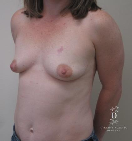 Breast Lift With Implants: Patient 1 - Before Image 4