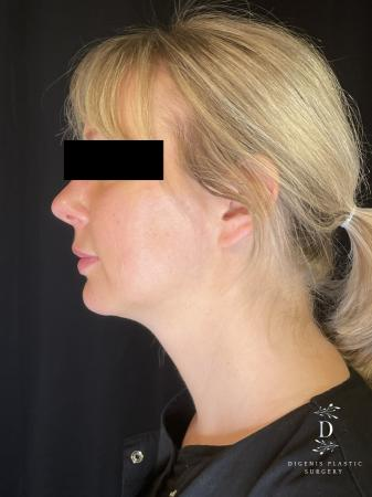 Injectables: Patient 3 - After Image 2