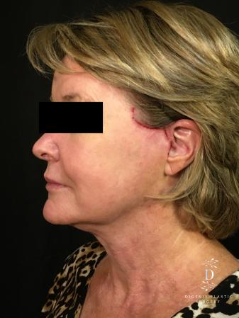 Digenis Refresh Lift: Patient 1 - After Image 4