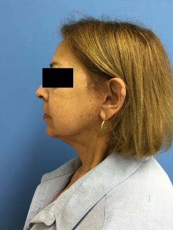 Facelift: Patient 7 - After Image 5