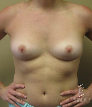 Breast Augmentation: Patient 3 - Before Image 1