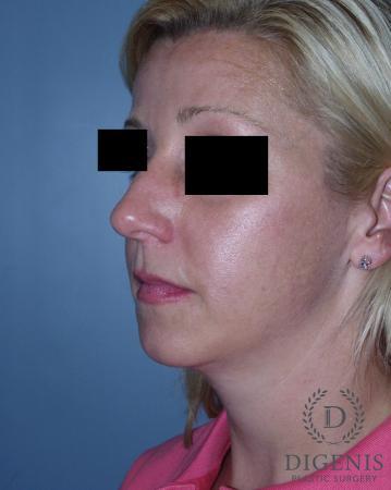 Rhinoplasty: Patient 3 - Before Image 4