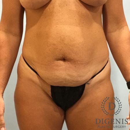 Abdominoplasty: Patient 3 - Before Image 1