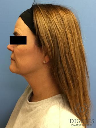 Facelift: Patient 11 - After Image 5