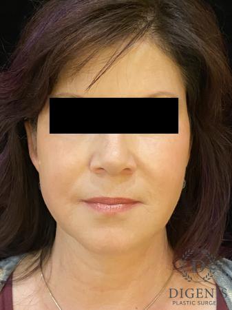 Digenis Refresh Lift: Patient 4 - After Image 1