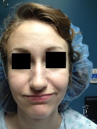 Rhinoplasty: Patient 4 - Before and After Image 4