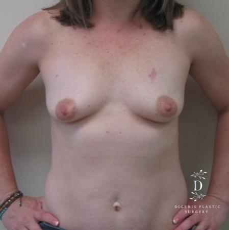 Breast Lift With Implants: Patient 1 - Before Image 1