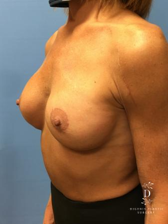 Breast Lift With Implants: Patient 3 - After Image 2