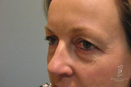 Eyelid Surgery: Patient 8 - Before and After Image 3