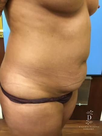 Abdominoplasty: Patient 1 - Before Image 2