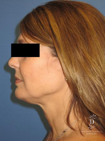 Facelift: Patient 10 - Before and After Image 5