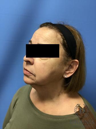 Facelift: Patient 7 - Before Image 4