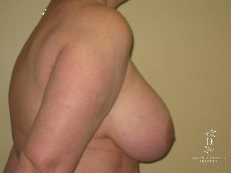 Breast Lift With Implants: Patient 7 - Before Image 3