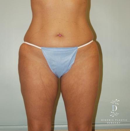 Liposuction: Patient 5 - Before Image 1