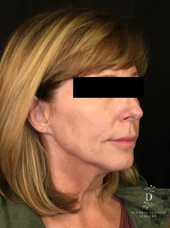 Digenis Refresh Lift: Patient 3 - Before Image 2