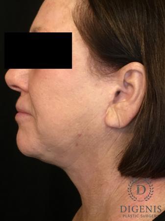 Facelift: Patient 13 - After Image 5
