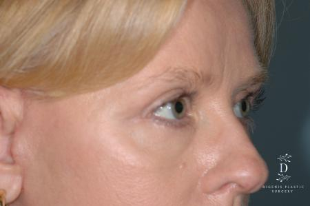 Eyelid Surgery: Patient 7 - After Image 2