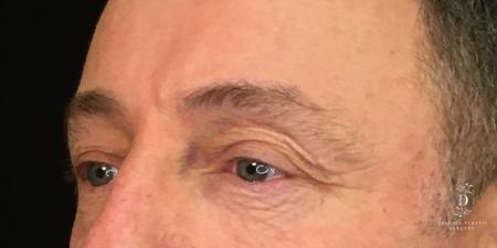 Eyelid Surgery: Patient 1 - Before Image 4