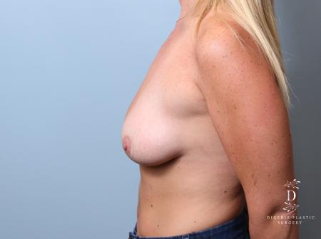 Breast Lift: Patient 7 - Before and After Image 5