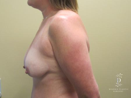 Breast Lift: Patient 5 - Before and After Image 5