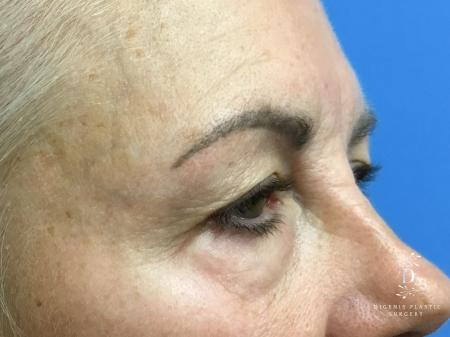 Eyelid Surgery: Patient 5 - Before Image 2