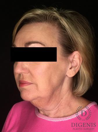 Facelift: Patient 2 - Before Image 2