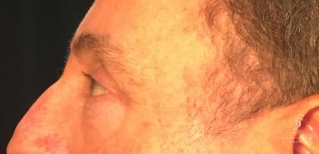 Eyelid Surgery: Patient 1 - After Image 5