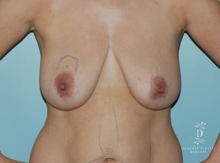 Breast Lift: Patient 3 - Before Image