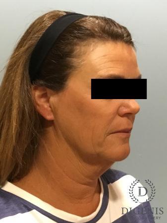 Facelift: Patient 11 - Before Image 2