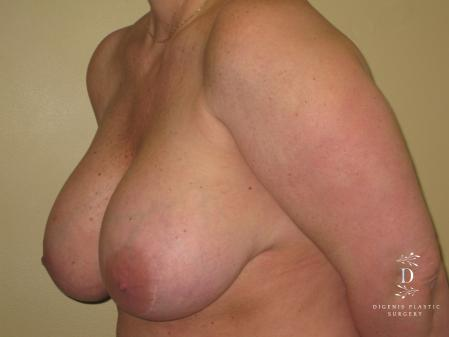 Breast Lift With Implants: Patient 7 - Before Image 4