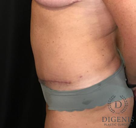 Abdominoplasty: Patient 3 - After Image 5