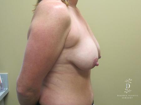 Breast Lift: Patient 5 - Before Image 3