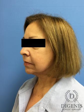 Facelift: Patient 7 - After Image 4