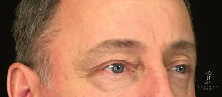 Eyelid Surgery: Patient 1 - Before Image 2