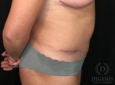 Abdominoplasty: Patient 3 - After Image 3