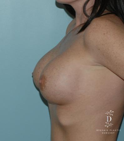 Breast Implant Exchange: Patient 1 - Before and After Image 3