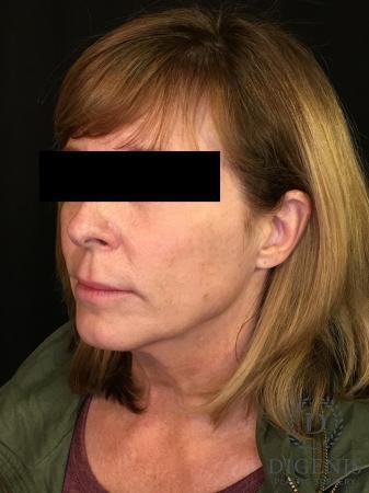 Digenis Refresh Lift: Patient 3 - Before Image 4