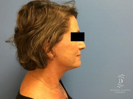 Facelift: Patient 15 - After Image 3