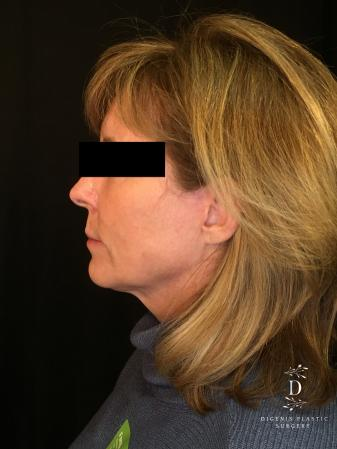 Digenis Refresh Lift: Patient 3 - After Image 5_2