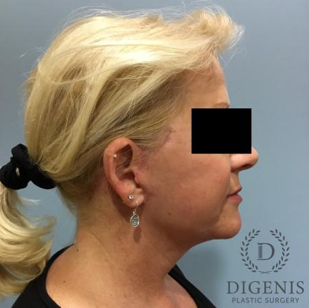 Facelift: Patient 12 - After Image 3